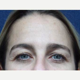 35-44 year old woman treated with Botox before 3520265