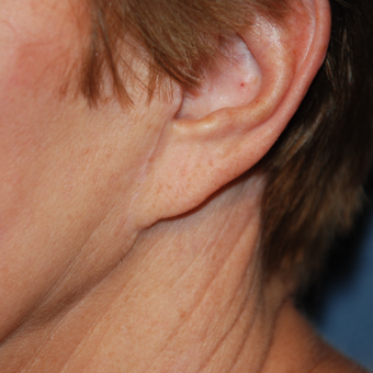 65-74 year old woman treated with Ear Lobe Surgery before 2994914