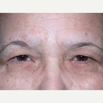 55-64 year old woman treated with Brow Lift