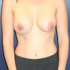 35-44 year old woman with Asymmetric Breasts treated with Breast Implants after 1568922