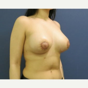 Tuberous Breast 18-24 year old woman treated with Breast Lift with Implants after 2530434