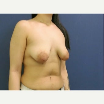 Tuberous Breast 18-24 year old woman treated with Breast Lift with Implants before 2530434