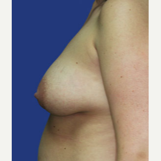 25-34 year old woman treated with Breast Lift with Implants before 3520078