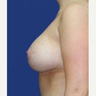 25-34 year old woman treated with Breast Lift with Implants after 3520078