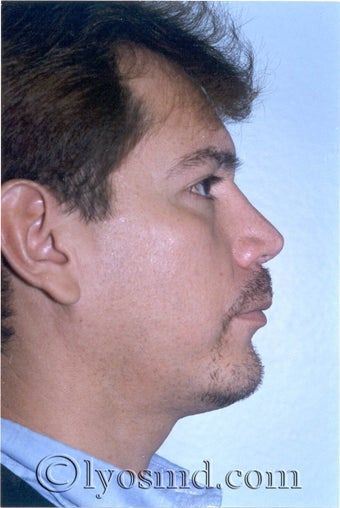 Rhinoplasty, Face and Neck Liposuction, Chin Correction after 226309