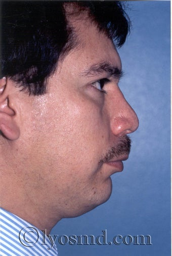 Rhinoplasty, Face and Neck Liposuction, Chin Correction before 226309