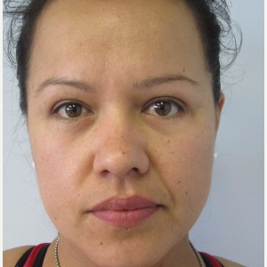 Eyelid Surgery after 3168639