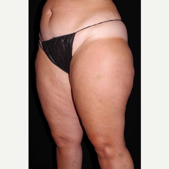 45-54 year old woman treated with Cellulaze after 3280728