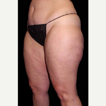 45-54 year old woman treated with Cellulaze before 3280728