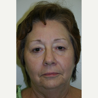 72 year old woman treated with Botox before 3442221