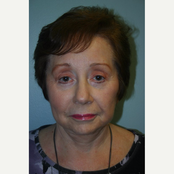 72 year old woman treated with Botox after 3442221