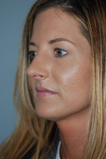 25-34 year old woman treated with a Tip Rhinoplasty 1672477