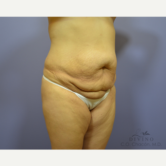 35-44 year old woman treated with Tummy Tuck before 3421964