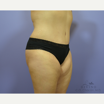 35-44 year old woman treated with Tummy Tuck after 3421964