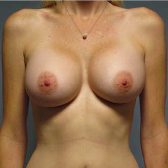 Breast Implants after 3033328