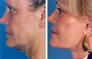 Facelift before 504986