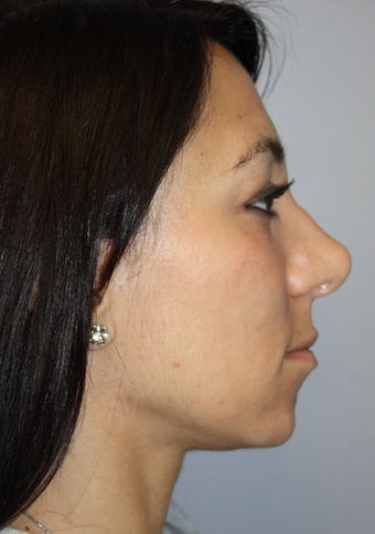 30 year old female requesting revision rhinoplasty