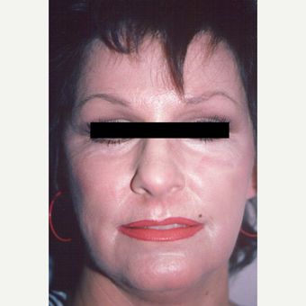 55-64 year old woman treated with Chemical Peel after 3543322