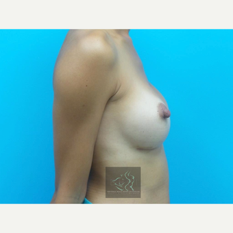 25-34 year old woman treated with Mentor Breast Implants after 3726011