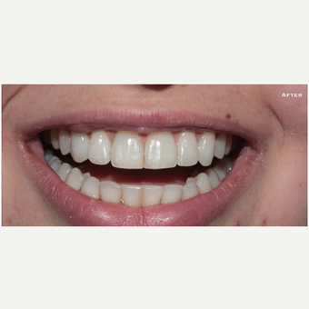 Fast Braces after 3127660