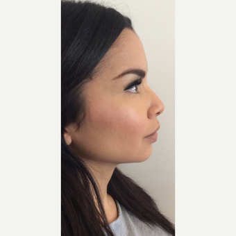 Voluma Non Surgical Nose Job™ before 3042493