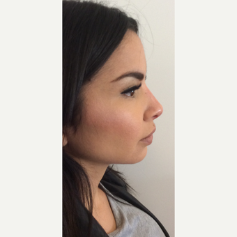 Voluma Non Surgical Nose Job™ after 3042493