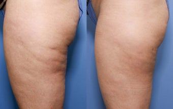 37 year old with cellulite after 696152