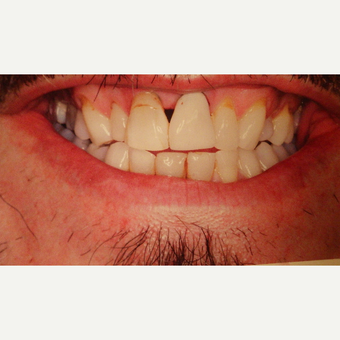 55-64 year old man treated with Smile Makeover before 3691204