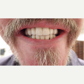 55-64 year old man treated with Smile Makeover after 3691204