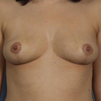 Breast Implant Removal and Breast Lift after 1599553