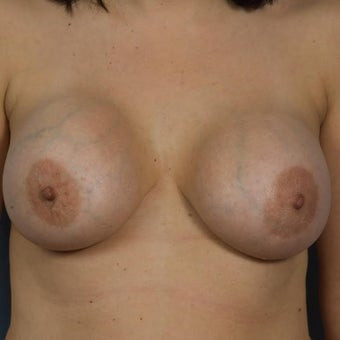 Breast Implant Removal and Breast Lift before 1599553