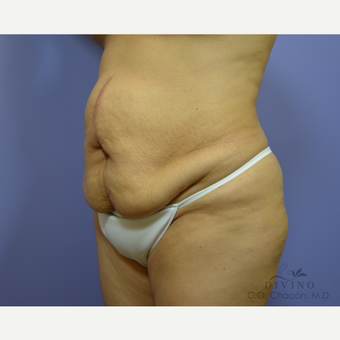 45-54 year old woman treated with Tummy Tuck before 3415694