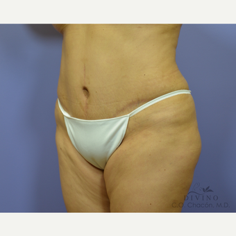 45-54 year old woman treated with Tummy Tuck after 3415694