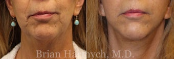 63 year-old female before and 6 months after Facelift and Fat Transfer (Fat Transplantation) before 3446172