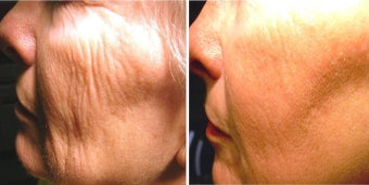 Before and After No Down Time 1540 Erbium Laser Resurfacing for Wrinkle Removal