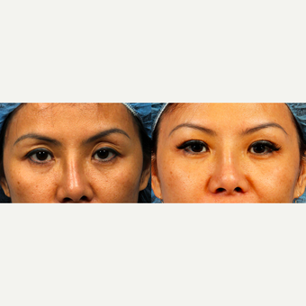 45-54 year old woman treated with Asian Eyelid Surgery