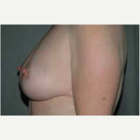 Breast Lift after 3058146