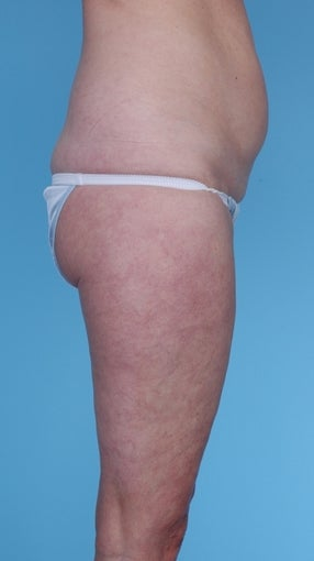 57 Year Old Female treated with Liposuction before 1069131