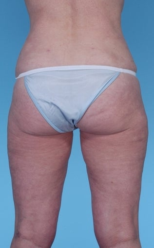 57 Year Old Female treated with Liposuction 1069131