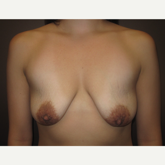 35-44 year old woman treated with Breast Implants before 3321220
