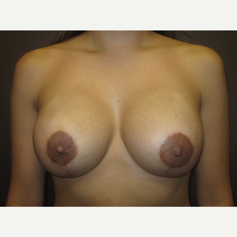 35-44 year old woman treated with Breast Implants after 3321220