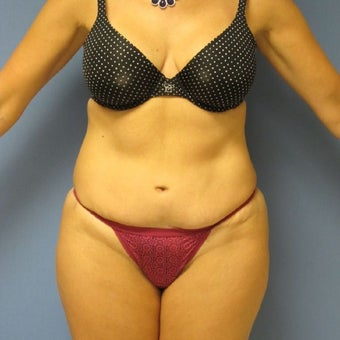 35-44 year old woman treated with Tummy Tuck Revision before 2144371
