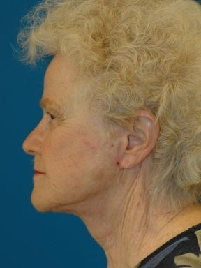 Lower Facelift and Necklift with Platysmaplasty after 241266