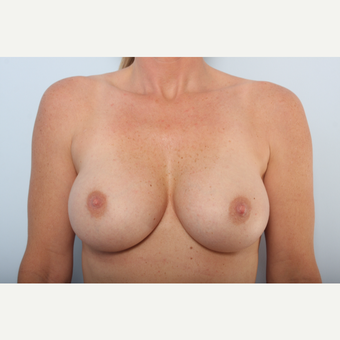 Breast Implant Exchange before 2966033