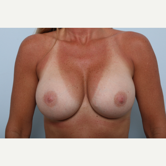 Breast Implant Exchange after 2966033