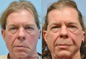 58 year old man with left facial paralysis before 1245435