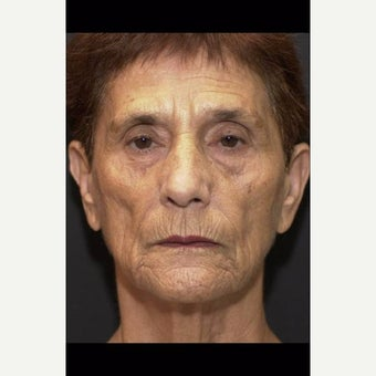 55-64 year old woman before 2604426