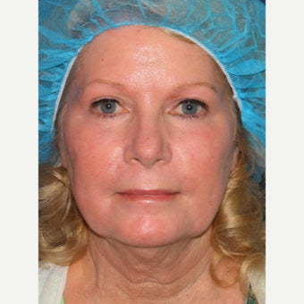 58 year old woman treated with Laser Resurfacing after 1942827