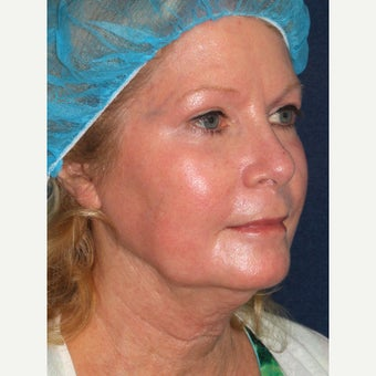 58 year old woman treated with Laser Resurfacing 1942827