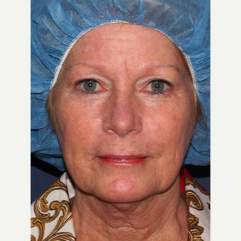58 year old woman treated with Laser Resurfacing before 1942827